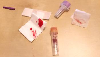 Blutabnahme beim IgG Test